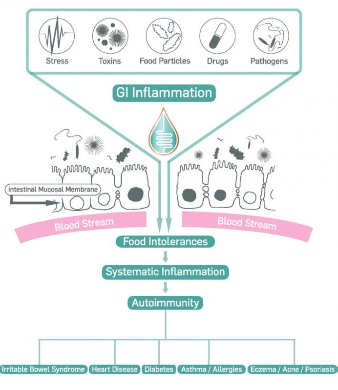 GI Inflammation detail image